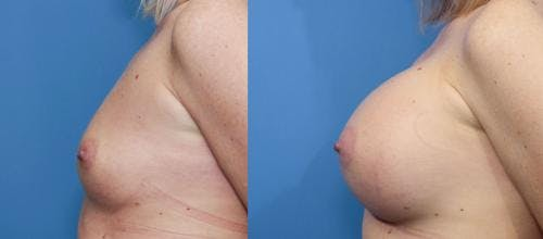 Breast Augmentation Gallery - Patient 58470451 - Image 3