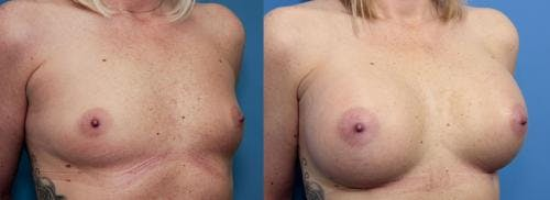 Breast Augmentation Gallery - Patient 58470451 - Image 4