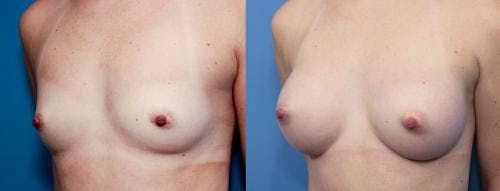 Breast Augmentation Gallery - Patient 58470453 - Image 2