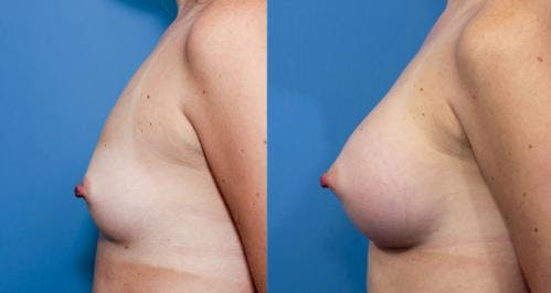 Breast Augmentation Gallery - Patient 58470453 - Image 3