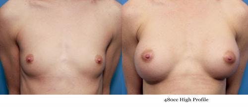 Breast Augmentation Gallery - Patient 58470455 - Image 1