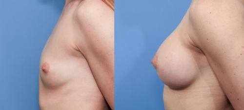 Breast Augmentation Gallery - Patient 58470455 - Image 2