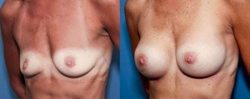 Breast Augmentation Gallery - Patient 58470456 - Image 1
