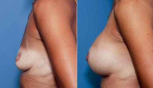 Breast Augmentation Gallery - Patient 58470456 - Image 2