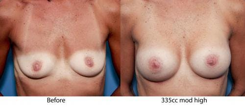 Breast Augmentation Gallery - Patient 58470456 - Image 3