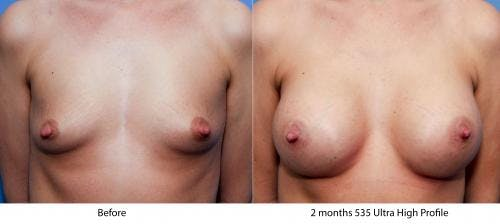 Breast Augmentation Gallery - Patient 58470458 - Image 1