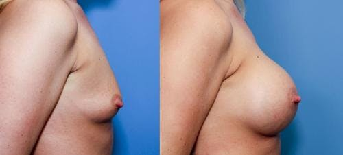 Breast Augmentation Gallery - Patient 58470458 - Image 2