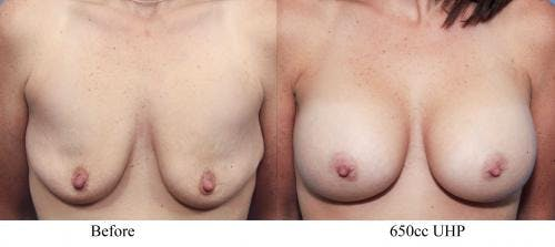 Breast Augmentation Gallery - Patient 58470459 - Image 1
