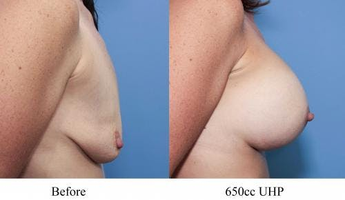 Breast Augmentation Gallery - Patient 58470459 - Image 2