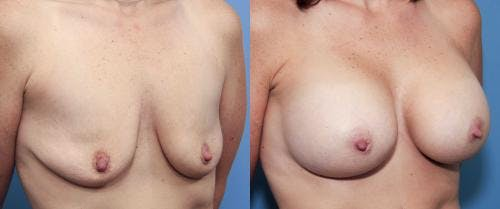 Breast Augmentation Gallery - Patient 58470459 - Image 3