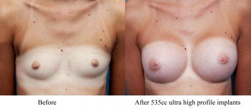 Breast Augmentation Gallery - Patient 58470460 - Image 1