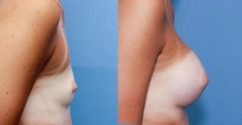 Breast Augmentation Gallery - Patient 58470460 - Image 2