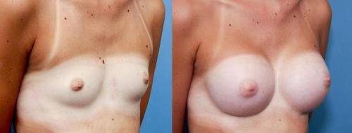 Breast Augmentation Gallery - Patient 58470460 - Image 3