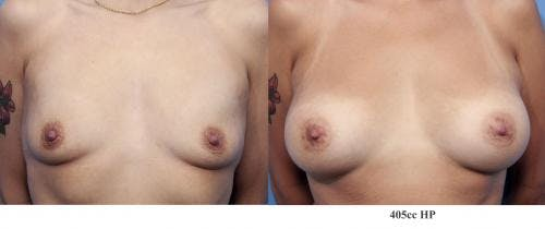 Breast Augmentation Gallery - Patient 58470464 - Image 1