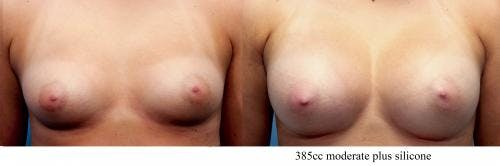 Breast Augmentation Gallery - Patient 58470465 - Image 1