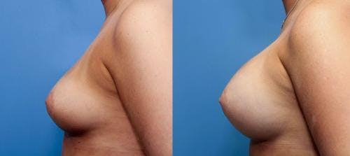 Breast Augmentation Gallery - Patient 58470465 - Image 2