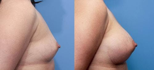 Breast Augmentation Gallery - Patient 58470466 - Image 2