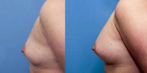 Breast Augmentation Gallery - Patient 58470466 - Image 3