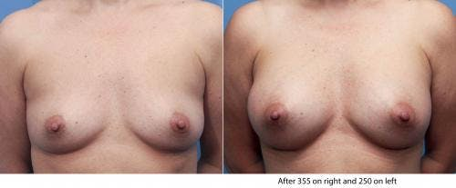 Breast Augmentation Gallery - Patient 58470466 - Image 1