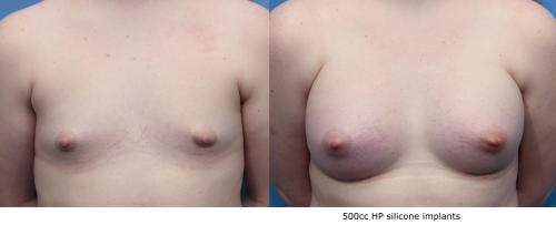 Breast Augmentation Gallery - Patient 58470468 - Image 1