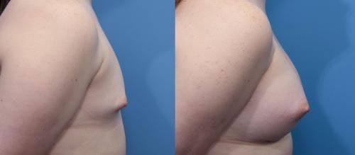 Breast Augmentation Gallery - Patient 58470468 - Image 2