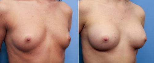 Breast Augmentation Gallery - Patient 58470469 - Image 1