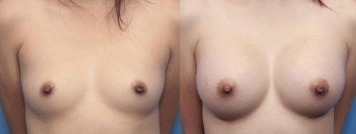 Breast Augmentation Gallery - Patient 58470470 - Image 1