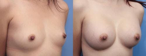 Breast Augmentation Gallery - Patient 58470470 - Image 2