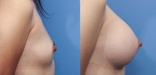 Breast Augmentation Gallery - Patient 58470470 - Image 3