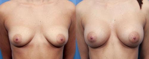 Breast Augmentation Gallery - Patient 58470471 - Image 1