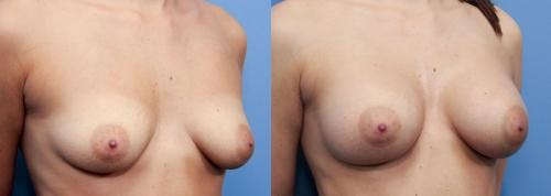 Breast Augmentation Gallery - Patient 58470471 - Image 2