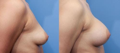 Breast Augmentation Gallery - Patient 58470471 - Image 3