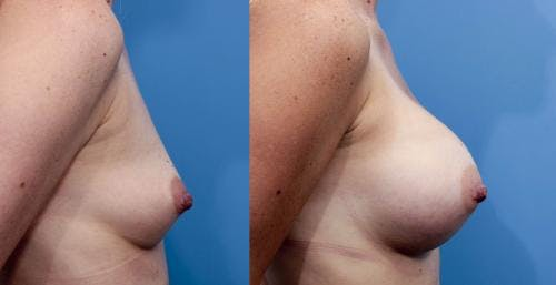 Breast Augmentation Gallery - Patient 58470472 - Image 3