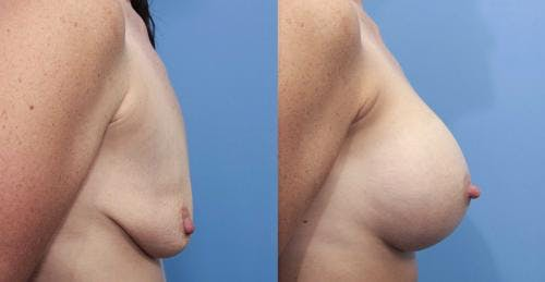 Breast Augmentation Gallery - Patient 58470474 - Image 2