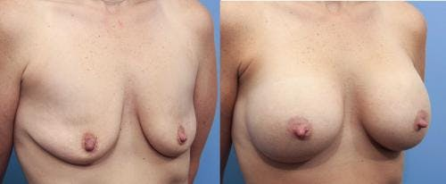 Breast Augmentation Gallery - Patient 58470474 - Image 3