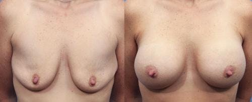 Breast Augmentation Gallery - Patient 58470474 - Image 1