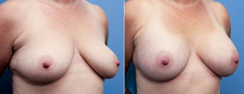 Breast Augmentation Gallery - Patient 58470475 - Image 2