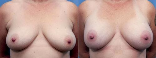 Breast Augmentation Gallery - Patient 58470475 - Image 1