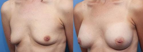 Breast Augmentation Gallery - Patient 58470476 - Image 2