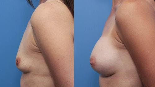 Breast Augmentation Gallery - Patient 58470476 - Image 3