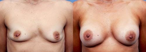 Breast Augmentation Gallery - Patient 58470477 - Image 1