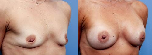 Breast Augmentation Gallery - Patient 58470477 - Image 2