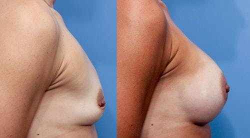 Breast Augmentation Gallery - Patient 58470477 - Image 3