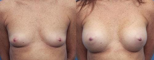 Breast Augmentation Gallery - Patient 58470478 - Image 1