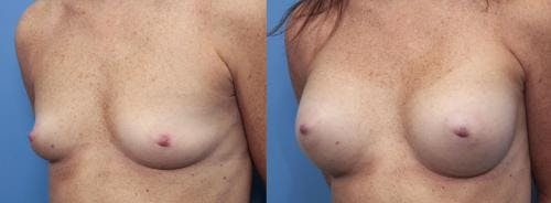 Breast Augmentation Gallery - Patient 58470478 - Image 2