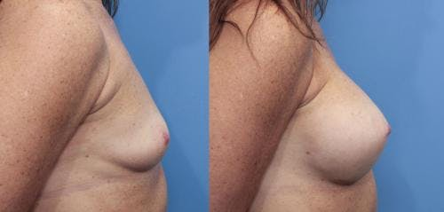 Breast Augmentation Gallery - Patient 58470478 - Image 3