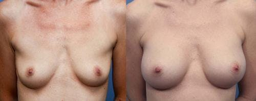 Breast Augmentation Gallery - Patient 58470479 - Image 1