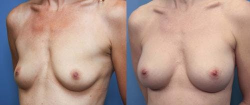 Breast Augmentation Gallery - Patient 58470479 - Image 2