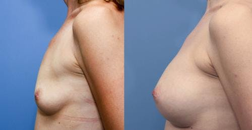 Breast Augmentation Gallery - Patient 58470479 - Image 3