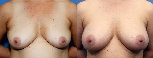Breast Augmentation Gallery - Patient 58470480 - Image 1